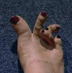 foot-cramp